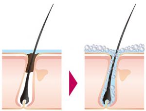 ルメントの頭皮洗浄力